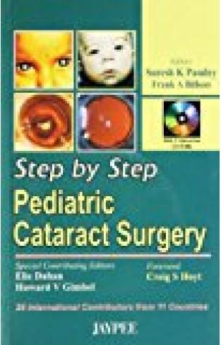 Step By Step Pediatric Cataract Surgery